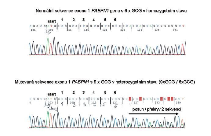 Příklady výsledků DNA vyšetření – nahoře s normálním počtem GCG tripletů, dole příklad mutace s alelou 9x GCG v PABPN1 genu v heterozygotním stavu.