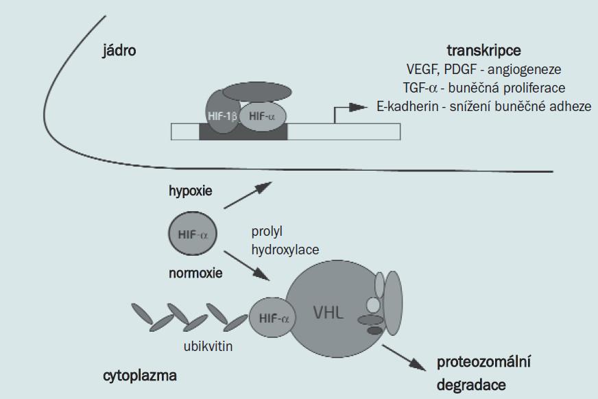 Schéma 1. Vývoj HIF-α. V normoxii je HIF-α hydroxylován, což umožní rozpoznání VHL, jehož destrukci způsobí. V hypoxii, nebo v případě defektního VHL, se HIF-α akumuluje a přesune do jádra, kde se spolu s dalšími faktory váže na DNA, což vede k transkripci genů podílejících se na tumorogenezi.