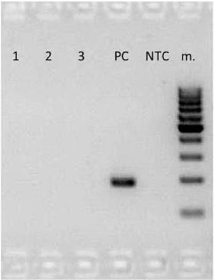 Fig. 3. Polymerase chain reaction (PCR). No positivity on agarose gel in any of three salivary gland tumor samples (Lanes 1 to 3). PC means positive control (HPV 18) and NTC is non template control.