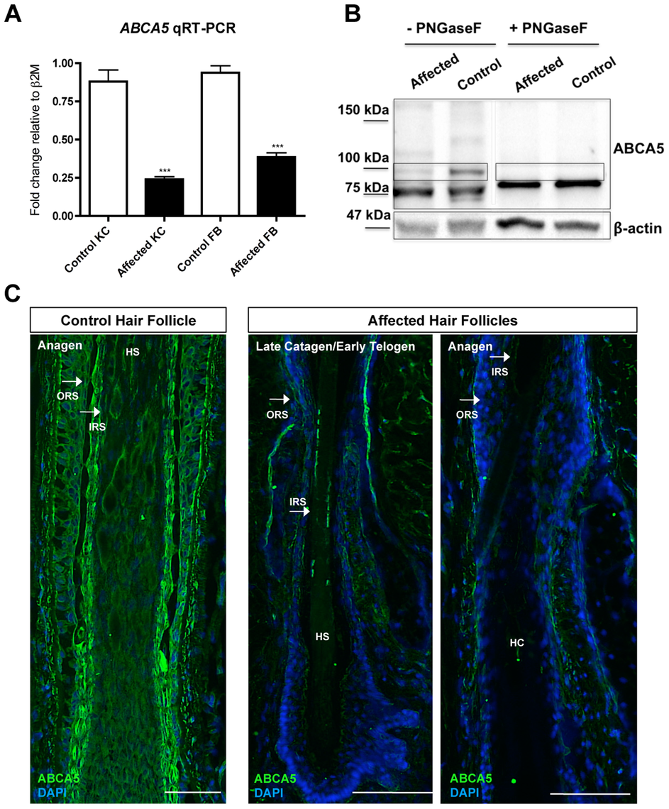 <i>ABCA5</i> levels are markedly reduced in patient hair follicles of the sporadic CGHT case.