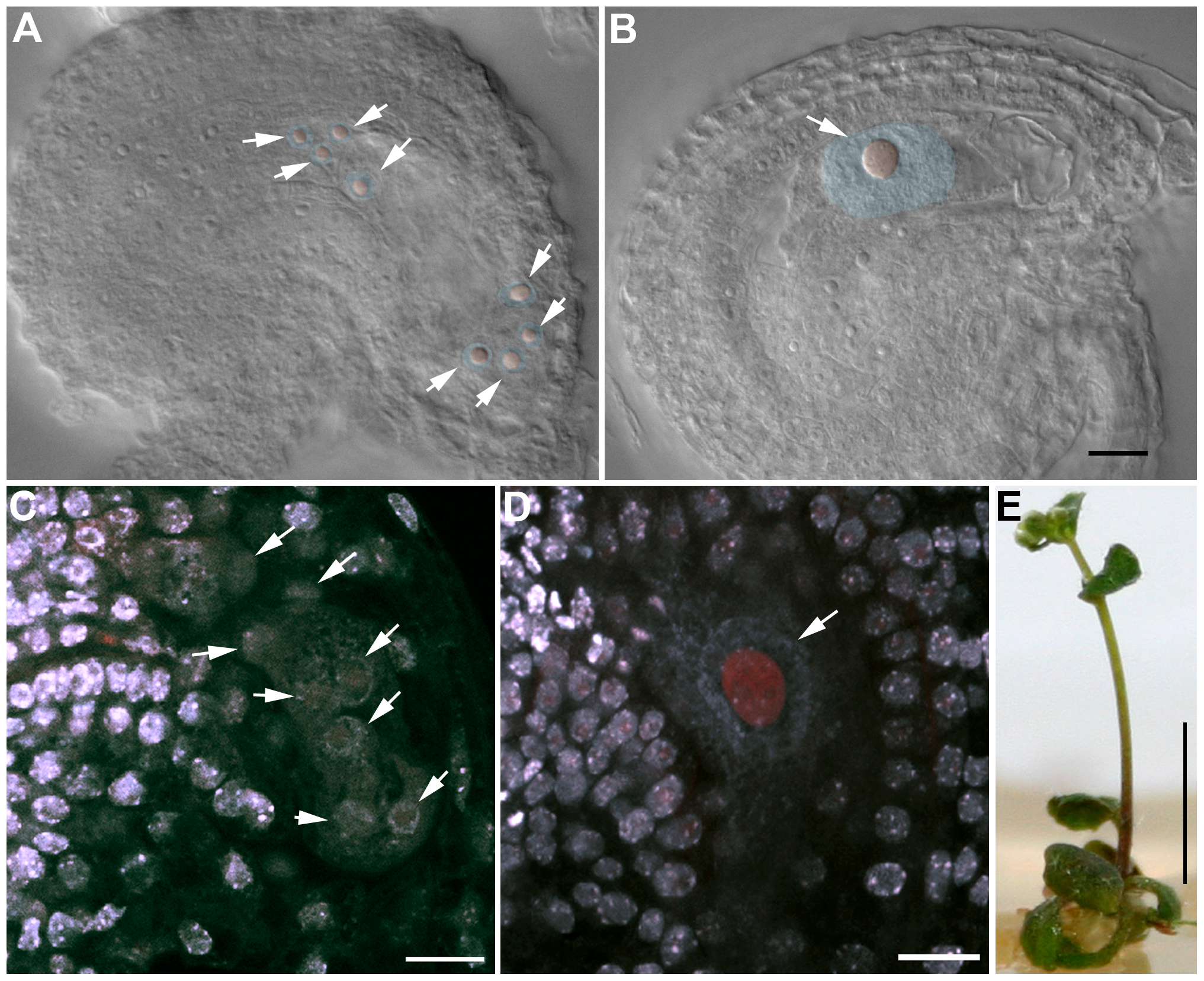 OSD1 and UVI4 are synthetically essential for female gametogenesis and somatic growth.