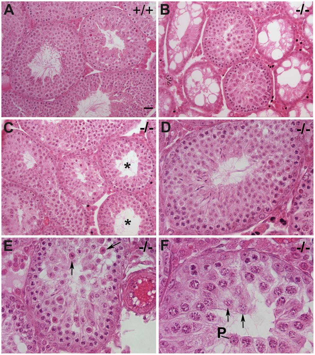 Impaired spermatogenesis in <i>Chtf18</i><sup>−/−</sup> mice.