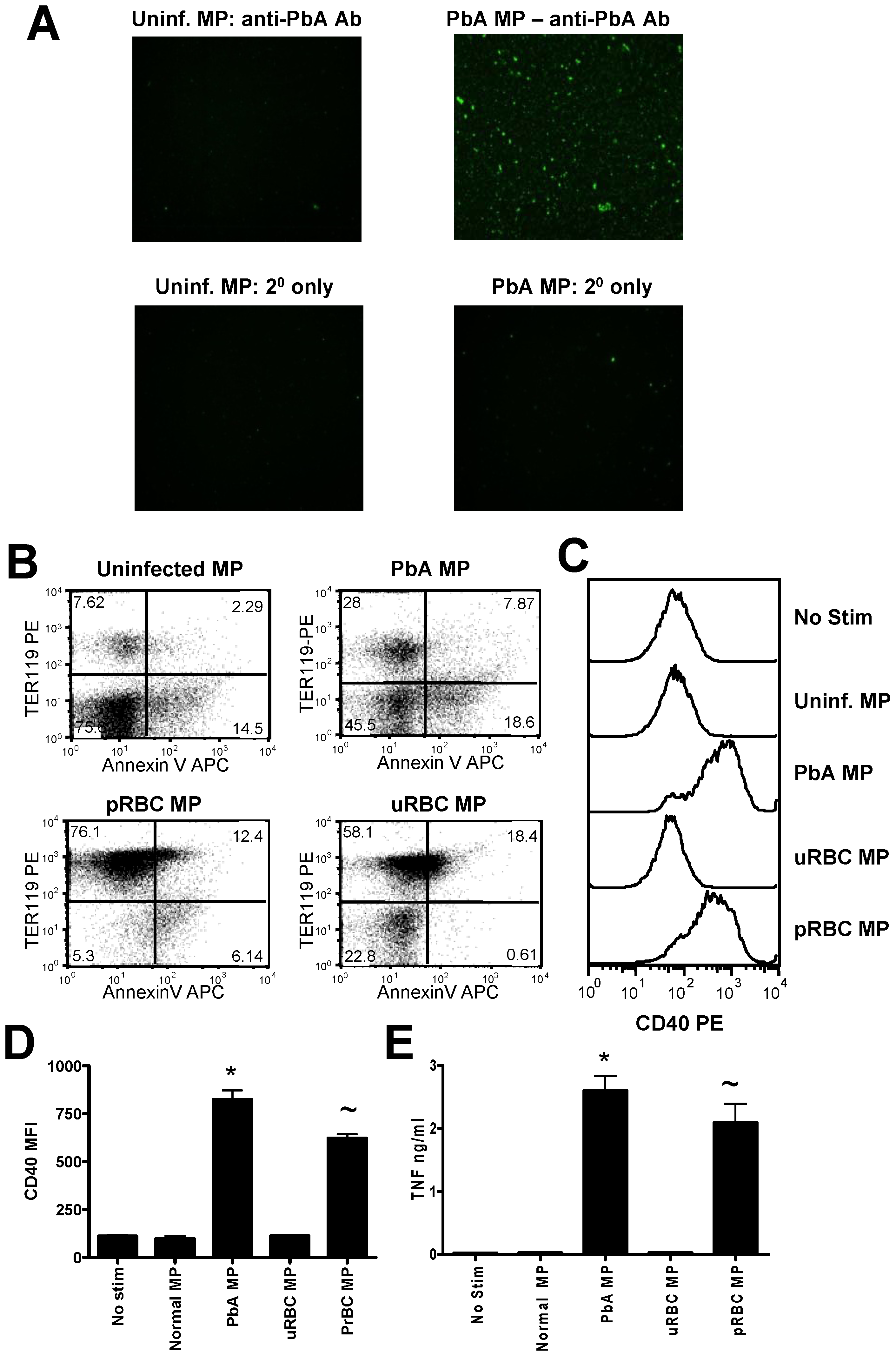 Immunogenic malaria infection-derived MPs are produced from pRBC and contain parasite materials.