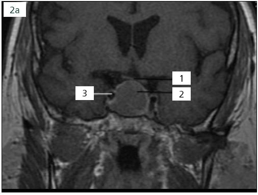 Obr. 2a. Předoperační MR: recidiva adenomu hypofýzy se supraselární porcí dotýkající se chiazmatu, již během první operace nalezen velmi tuhý adenom hypofýzy, 1. chiazma, 2. adenom hypofýzy, 3. arteria cerebri interna.