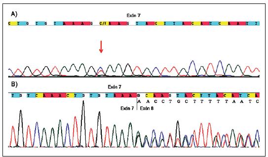 Netypická zostrihová mutácia v exóne 7 u pacienta P68. Obr. 1a) gDNA sekvencia pacienta so substitúciou c.989C>T (označená červenou šípkou), ktorá by na základe tejto sekvencie bola klasifikovaná len ako mutácia vedúca k zámene aminokyseliny p.Ala330Val v exóne 7. Obr. 1b) cDNA sekvencia pacienta, ktorá ukazuje, že výsledným efektom vyššie uvedenej substitúcie je delécia časti exónu 7 (r.988_1062 del 75bp), ktorá na proteínovej úrovni vedie k delécii p.Ala330_Lys354del, a tým ku skráteniu NF1 proteínu.