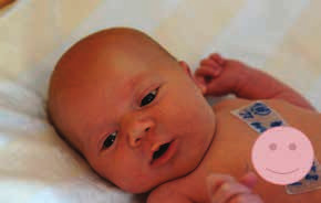 Zdravý novorozenec, dívka narozená pacientce s ISZ v graviditě léčené infliximabem