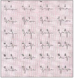 Elektrokardiografický záznam (EKG) zátěžového testu na bicyklovém ergometru z 13. 2. 2003. Subjektivně v průběhu tělesné zátěže i zotavení bez bolestí na hrudi.