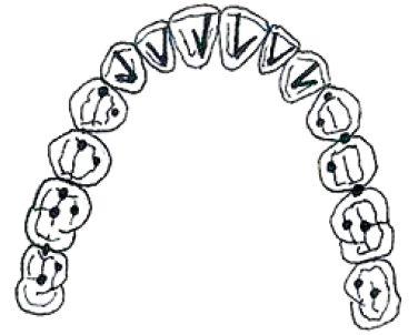 """Ideální kontakty ve statické a dynamické okluzi podle Dawsona: """"tečky vzadu, linky vepředu"""". Tečky na laterálních zubech značí, že na laterálních zubech jsou pouze kontakty v maximální interkuspidaci. Linky vepředu značí úkol frontálních zubů diskludovat laterální zuby u všech exkurzí."""