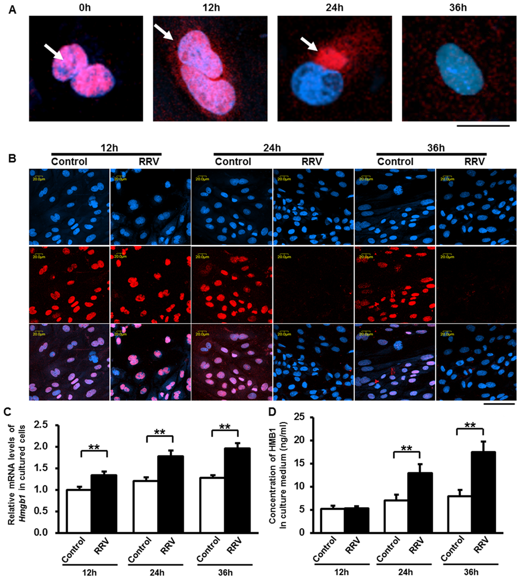Synthesis and release of HMGB1 induced by RRV infection on cultured cholangiocytes.