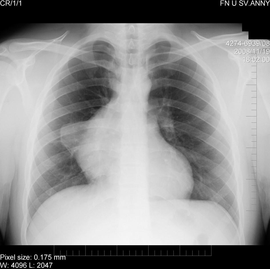 Původní rentgenogram s patologickým zastíněním mediastina Fig. 1. The original chest X-ray with the patologic mediastinum