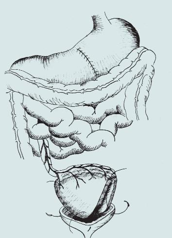 Gastrocystoplastika. (A – klínovitá resekce těla žaludku s bází na velké kurvatuře, B – mobilizace segmentu žaludku s ponecháním výživy pravou gastroepiploickou arterií, C – transpozice segmentu žaludku do pánve a anastomóza s močovým měchýřem)