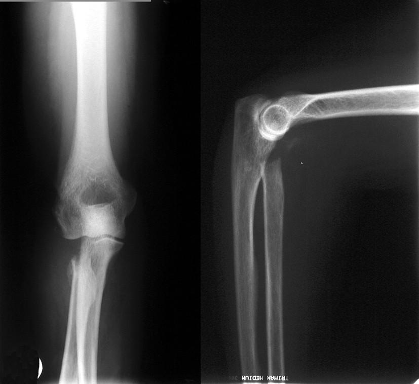 Obr. 6b: RTG dokumentácia 61ročnej pacientky s luxačnou trieštivou zlomeninou hlavičky radia. Stav po extirpácií hlavičky radia, repozícií lakťa a rekonštrukcií kapsuloligamentózneho aparátu.