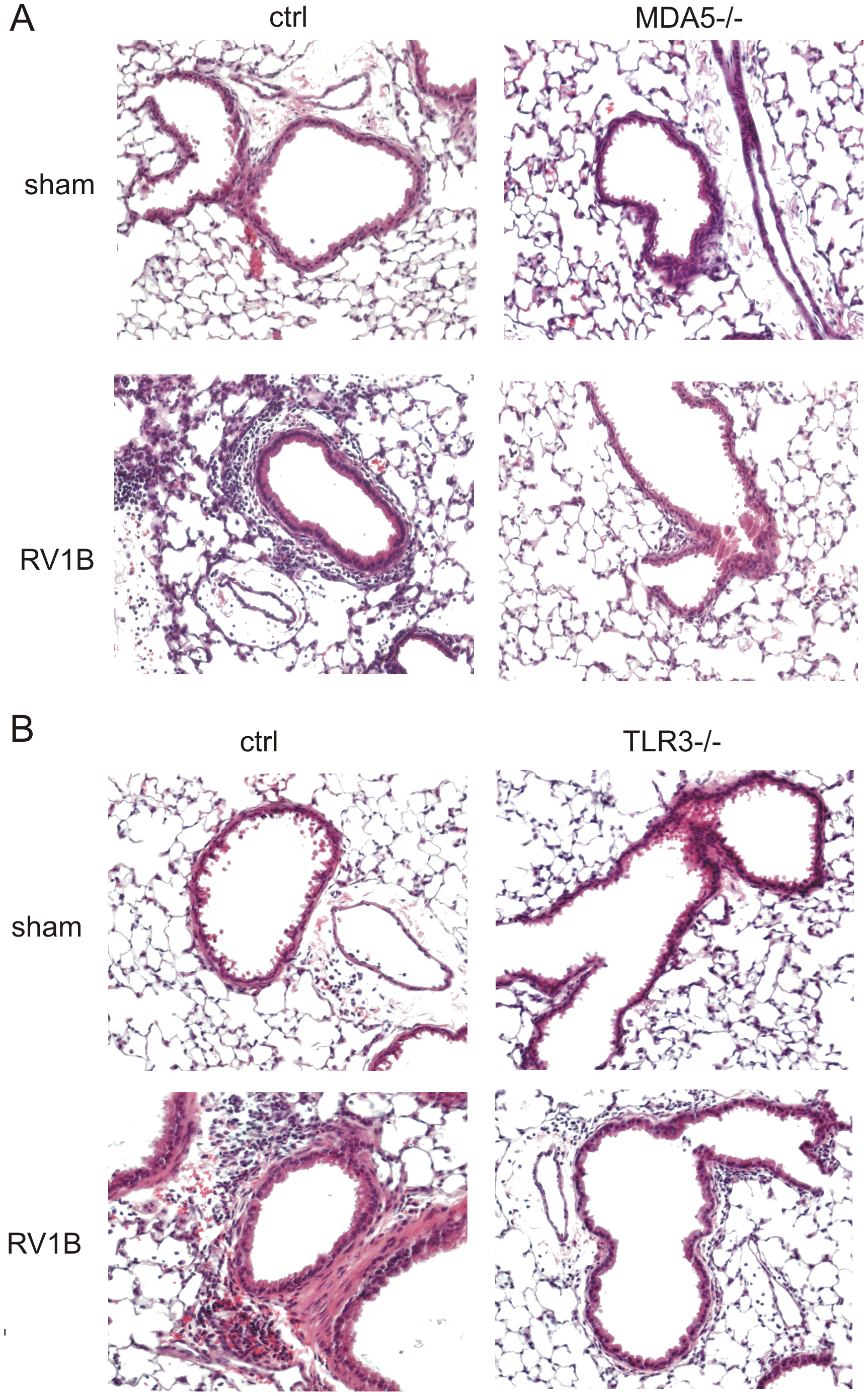 Airway inflammation in RV1B-infected MDA−/− and TLR3−/− mice.