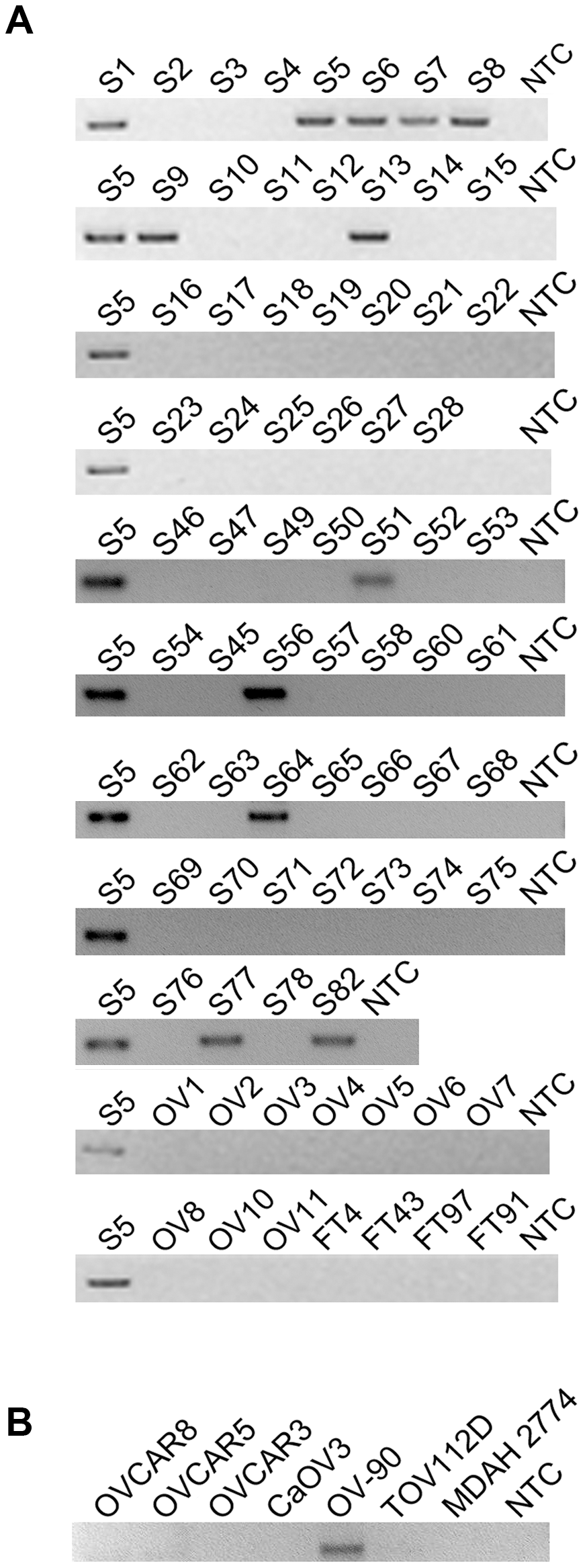 <i>CDKN2D-WDFY2</i> is a highly frequent fusion transcript in HG-SC cancer samples and cell line.