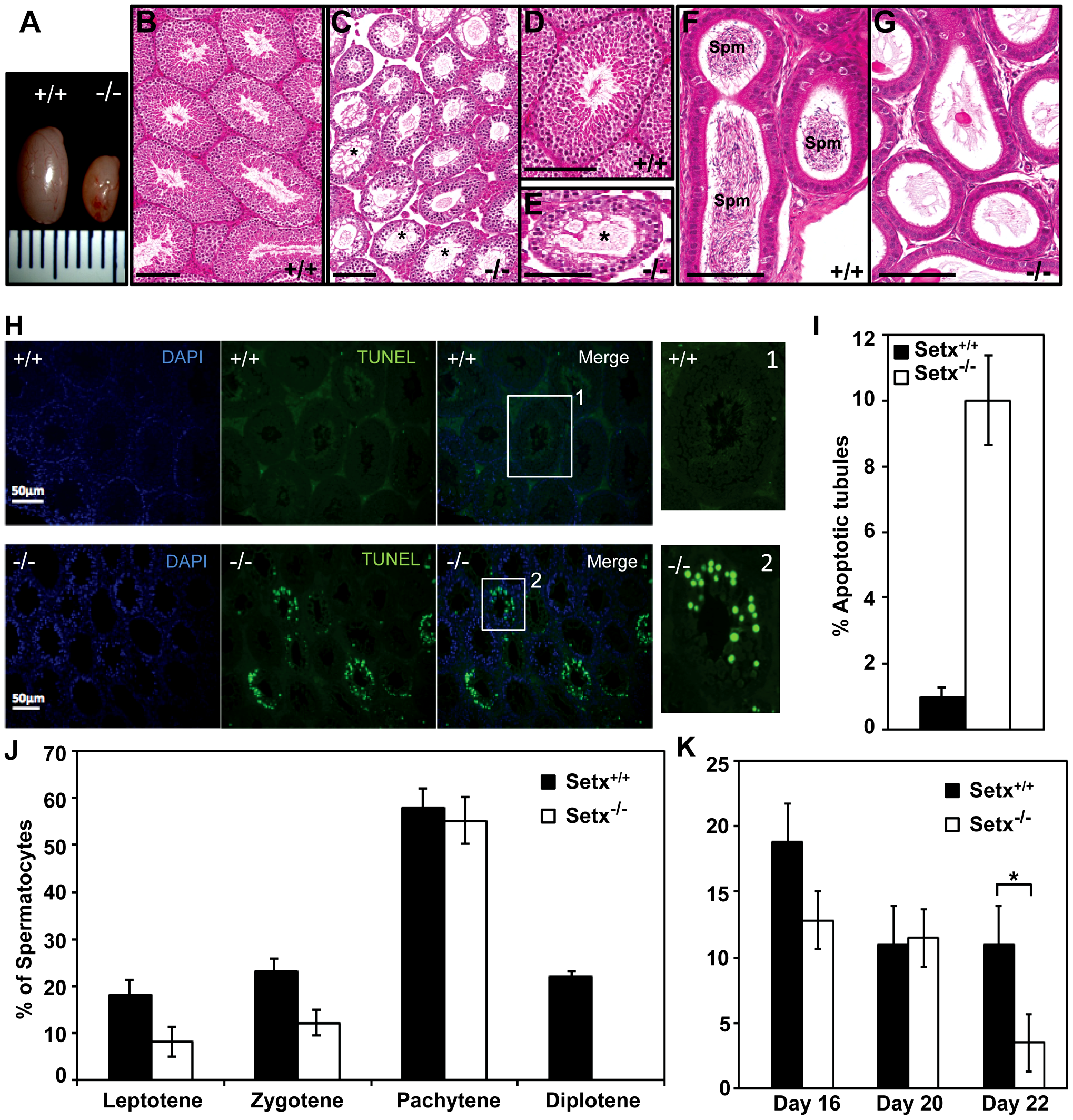 Spermatogenesis is disrupted in <i>Setx<sup>−/−</sup></i> mice.