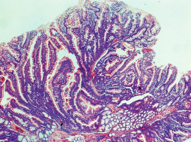 Tubulovillous adenoma of the duodenum, HE, 40x