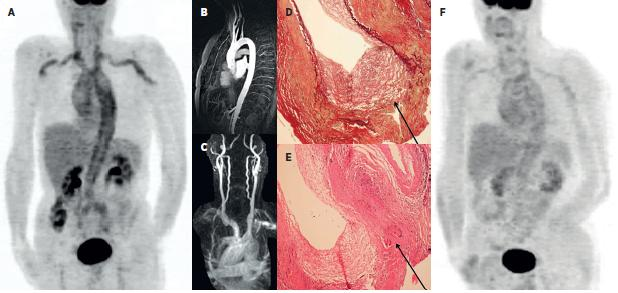 Kazuistika – muž 65 let 2A: PET MIP trupu ve fázi metabolicky aktivní vaskulitidy provázené laboratorními i klinickými známkami zánětlivého onemocnění. Je patrna vysoká akumulace FDG v aortě a v některých velkých tepnách (truncus brachiocephalicus, a. carotis communis bilat., a. subclavia a a. brachialis bilat.). 2B a 2C: Při podezření na vaskulitidu bylo provedeno MRA vyšetření aortálního oblouku a krčních tepen – bez průkazu známek vaskulitidy. Excize temporální tepny ale potvrdila obrovskobuněčnou, temporální arteritis - 2D: barvení na elastická vlákna zv. 100x, průkaz rozpadu lamina elastica interna (označeno). 2E: HE, zv. 100x, průkaz vícejaderných buněk (označeno). 2F: Kontrolní PET vyšetření po 8 měsících terapie glukokortikoidy prokazuje pokles akumulace FDG ve velkých tepnách.