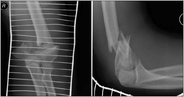 Tříštivá dislokovaná intraartikulární zlomenina distálníého humeru AO 13C3