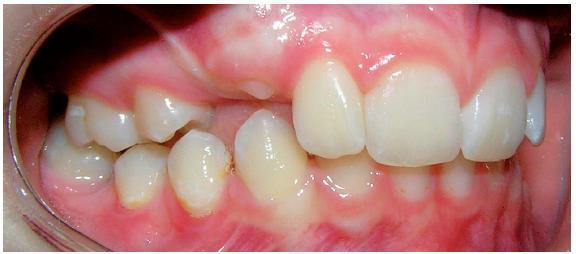 Chrup zprava po extrakcích stálých zubů