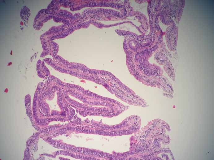 Obr. 6a. Mikroskopický obraz: papilárně utvářená sliznice choledochu s lehkou dysplazií, barvení hematoxylin-eozin, zvětšeno 100×. Fig. 6a. Microscopic findings: fibrovascular stalks lined by biliary epithelia with low-grade dysplasia, hematoxylin-eosin, original magnification ×100.