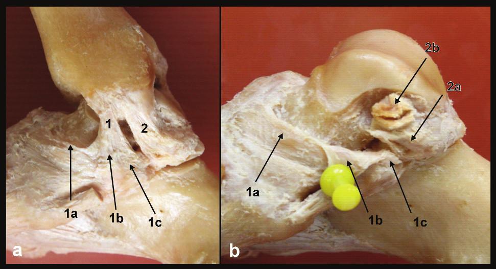 """Anatomie deltového vazu, pravé hlezno a – pohled z mediální strany, b – stav po odstranění tibiofibulární vidlice, 1 – přední tibio-subtalární část deltového vazu, 1a – tibionavikulární vlákna, 1b – tibio-""""spring"""" vlákna, 1c – tibiokalkaneární vlákna, 2 – zadní tibio-talární část deltového vazu, 2a – talární úpon vertikálních povrchových vláken, 2b – talární úpon hlubších horizontálních vláken"""