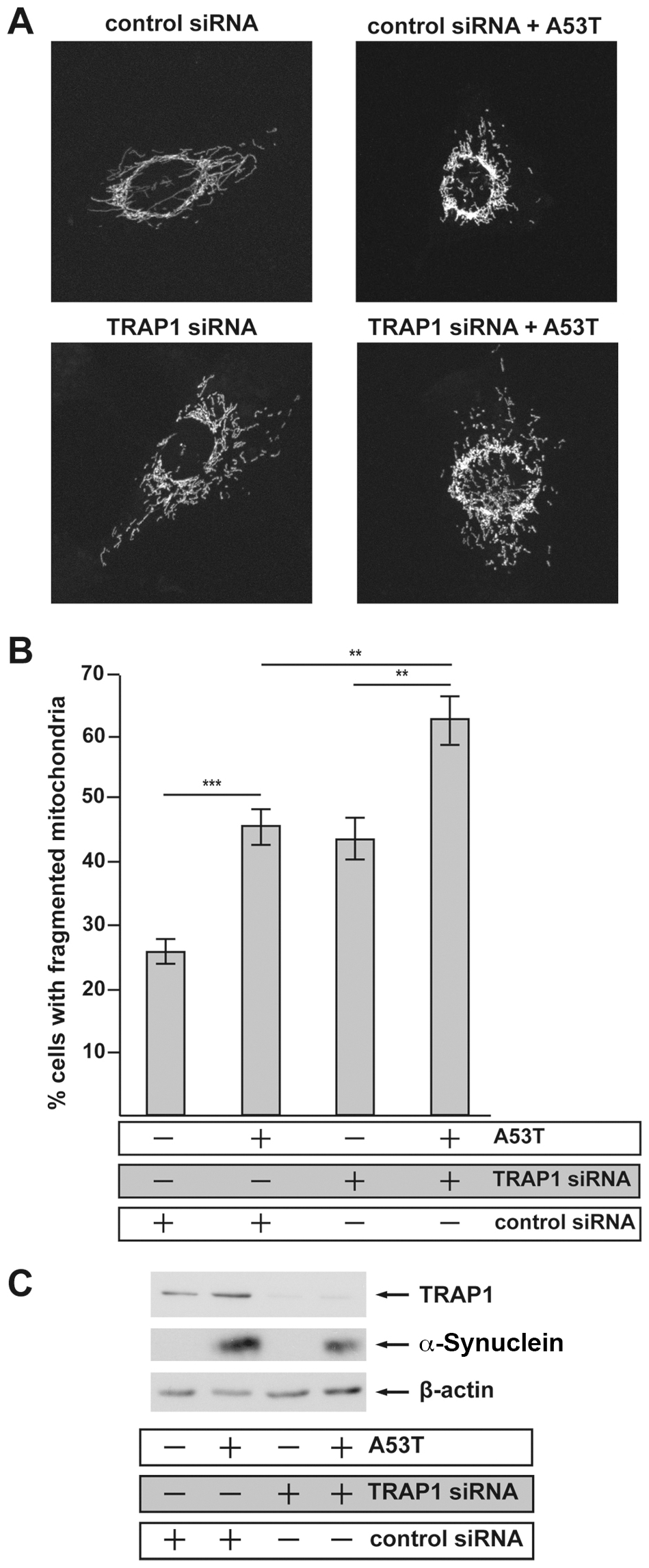 Transient siRNA-mediated knockdown of TRAP1 increases [A53T]α-Synuclein-induced mitochondrial fragmentation.