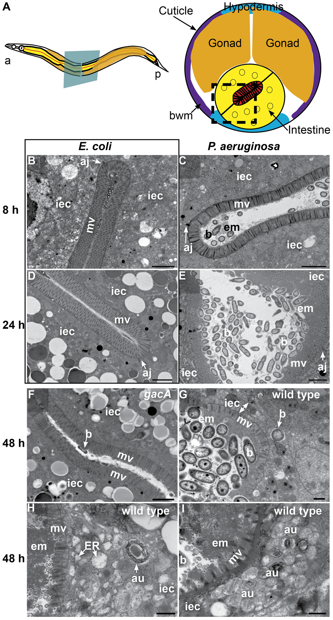 <i>P. aeruginosa</i> causes intestinal distention, extracellular material accumulation, intracellular invasion, and abnormal autophagy.