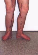 Pacient po angioskopicky asistovaném insitu pedálním bypassu se schematicky zakresleným průběhem žilního štěpu.