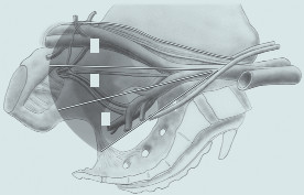 Doporučovaný rozsah lymfadenektomie při radikální cystektomii (obrázek publikován s laskavým souhlasem společnosti Galén). 1 – zevní ilické uzliny 2 – obturatorní uzliny 3 – vnitřní ilické uzliny