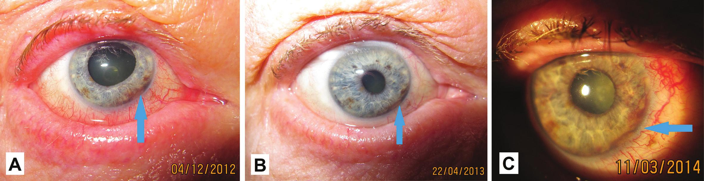 Makrofoto predného segmentu oka u pacienta v r. 2012 (A), v r. 2013 (B) a v r. 2014 (C)
