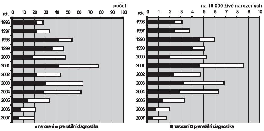 a. Absolutní počty syndromu hypoplazie levého srdce v ČR, 1996 – 2007 b. Relativní incidence syndromu hypoplazie levého srdce v ČR, 1996 – 2007