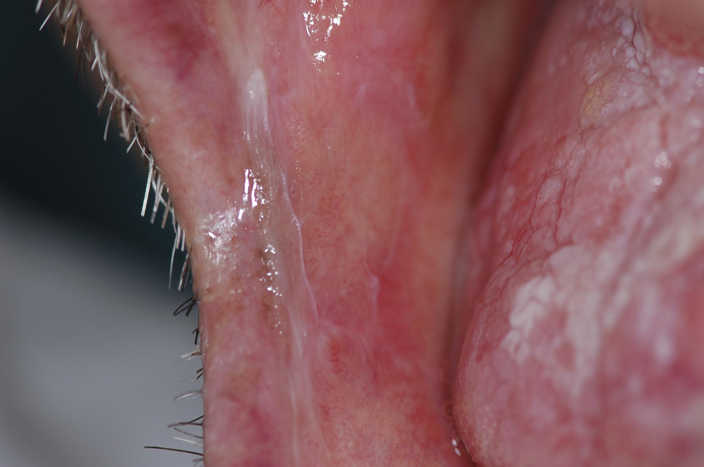 Interlacing White Striae on the Right Buccal Mucosa, Consistent with the Diagnosis of Oral Lichen Planus
