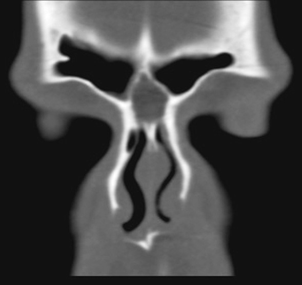 Fig. 5. Nasal dermoid lies under the nasal bones, without an intracranial extension