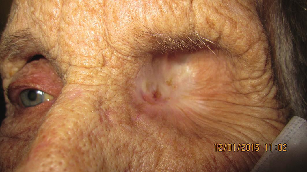 Detail očnice pri poslednej kontrole (1/2015); pacientka je viac ako 2,5 roka po exenterácii, bez recidívy malígneho melanómu v oblasti očnice po exenterácii očnice, dutina bez recidívy (10/2012)
