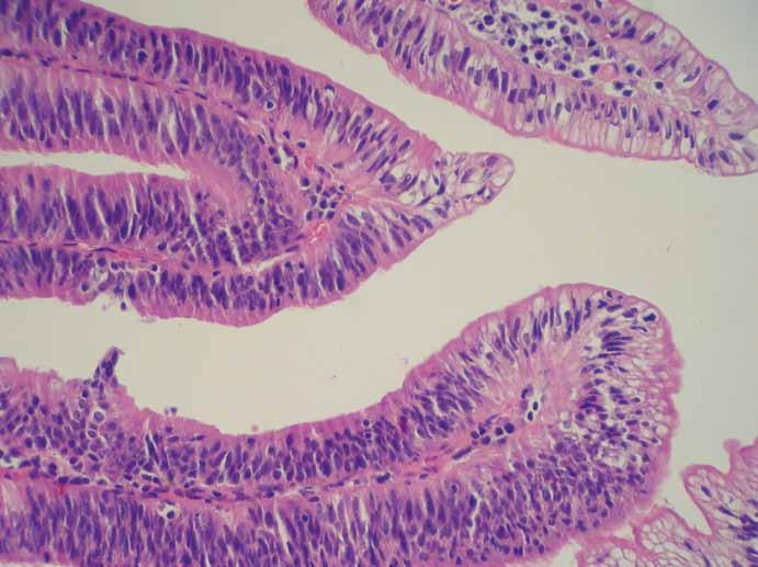 Obr. 6b. Mikroskopický obraz: papilárně utvářená sliznice choledochu s lehkou dysplazií, barvení hematoxylin-eozin, zvětšení 400×. Fig. 6b. Microscopic findings: fibrovascular stalks lined by biliary epithelia with low-grade dysplasia, hematoxylin-eosin, original magnification ×400.