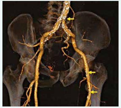 CT angiografie (3D rekonstrukce) distální aorty, pánevního řečiště a obou femorálních tepen; patrné mnohočetné aterosklerotické postižení (šipky).