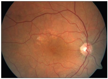 Týž pacient jako na obr. 2 – stav po mřížkové fotokoagulaci