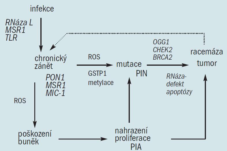 Model patogeneze karcinomu prostaty vázaný na genetickou náchylnost, infekci a chronický zánět. Některé varianty genů náchylnosti ke karcinomu prostaty predisponují k infekci a různé defekty buněčné obrany proti oxidačními stresu, vyvolaného infekcí a jinými zdroji, vedou k nahrazení hyperproliferace (histologicky manifestované jako PIA), mutacím (histologicky manifestované jako PIN) a ke vzniku karcinomu. Tento proces je pravděpodobně podpořen dalšími zdroji oxidačního stresu jako je dietní a environmentální vliv. PIA = proliferative inflammatory atrophy/proliferační zánětlivá atrofie PIN = prostate intraepithelial neoplasy/prostatická intraepiteliální neoplazie