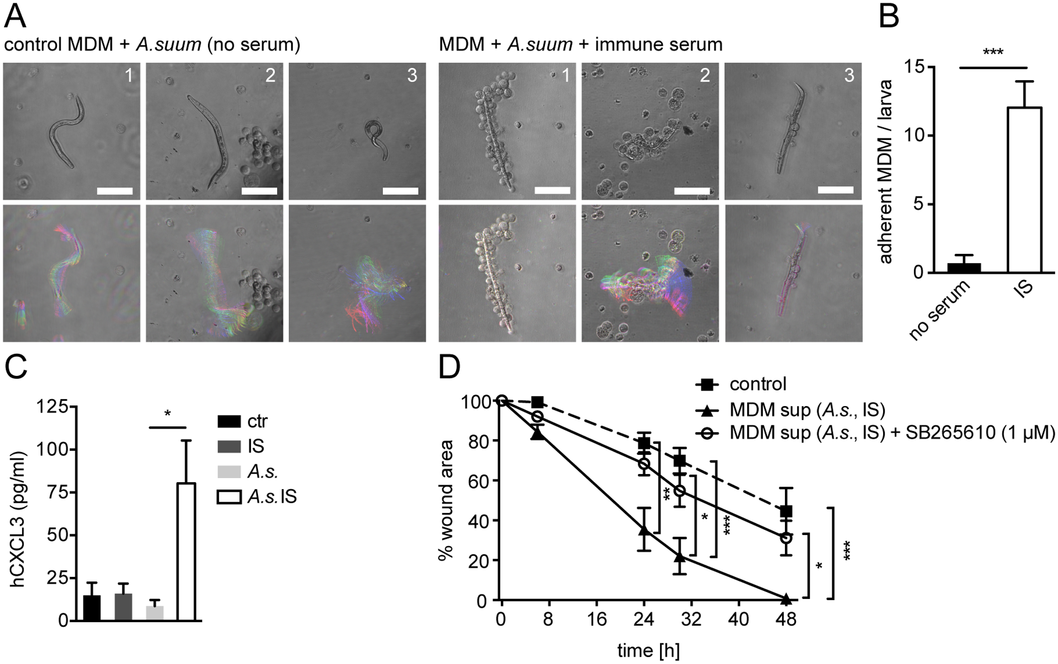 Conditioned media from <i>A</i>. <i>suum</i>-immune serum-activated MΦ promote in vitro scratch wound closure by human MF in a CXCR2 dependent fashion.