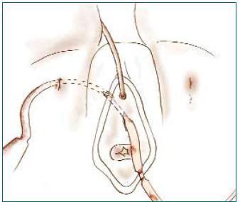 Nasazení pásky a její protažení membránou.
