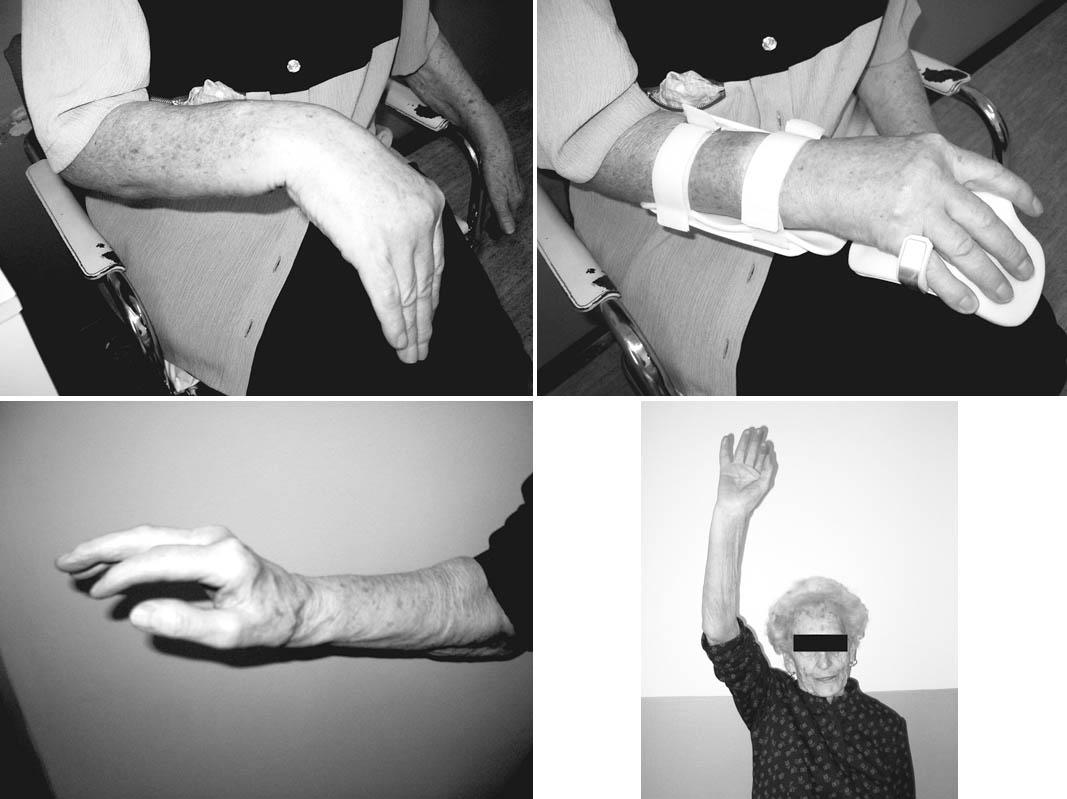 79letá pacientka s iatrogení parézou radiálního nervu a) stav bezprostředně po operaci, b) stabilizace zápěstí ortézou c)obnovení funkce radiálního nervu d) konečný funkční výsledek Pic. 4. A 79 year- old female patient with a iatrogenic radial nerve paresis a) immediate postsurgical condition, b) stabilisation of her wrist with orthesis c) recovery of the radial nerve function d) final functional result