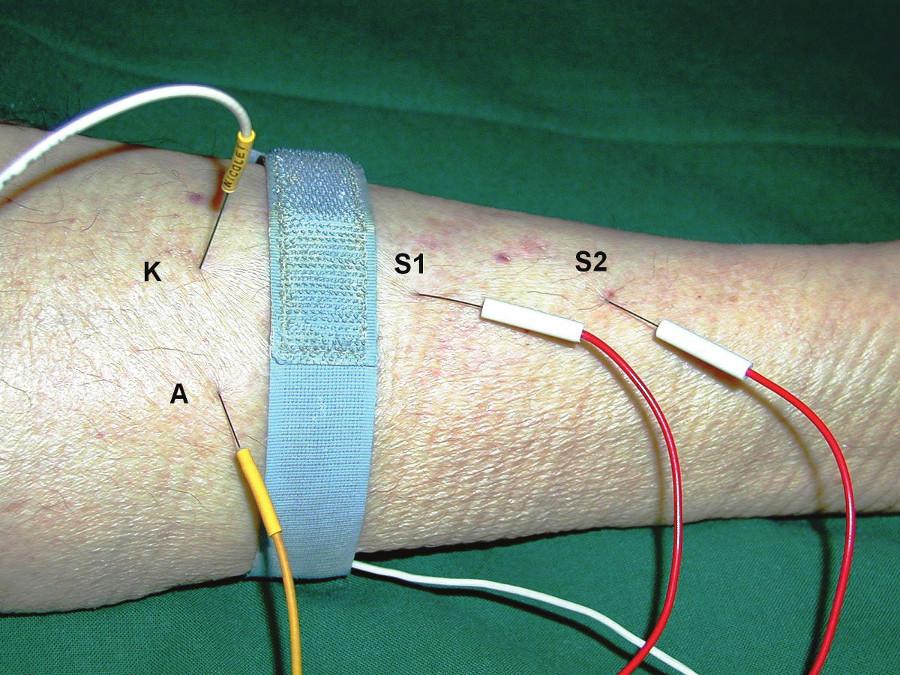 Umístění elektrod při vyšetření přímou svalovou stimulací – m. tibialis anterior. Monopolární stimulační jehlová elektroda zapojená jako katoda (K) je umístěna intramuskulárně do m. tibialis anterior distálně od motorického bodu svalu, druhá monopolární elektroda zapojená jako anoda (A) je umístěna subkutánně asi 2 cm laterálně od katody. Druhý pár monopolárních elektrod je použit ke snímání: S1 (zapojena jako aktivní) 2–3 cm distálně od katody intramuskulárně, S2 (referenční snímací elektroda) několik cm distálně od S1.