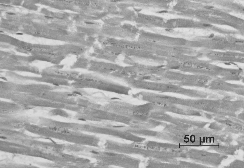 Figure 2. Lipofuscin deposition around the nucleus (myocardium, Schmorl's staining, objects; x40)