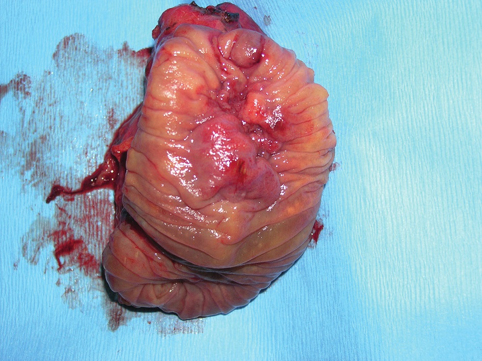 Intraampullary adenocarcinoma of the papilla of Vater – resected specimen