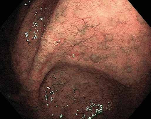 Normální tračník, slizniční lymfatické folikuly (drobná okrouhlá mírně prominující ložiska), zvýraznění pomocí narrow band imaging. Fig. 6. Normal colon, mucosal lymphatic follicles (small circular slightly protruding spots), highlighted by narrow band imaging.