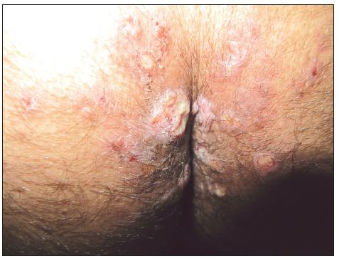 Condylomata lata u HIV pozitivního pacienta
