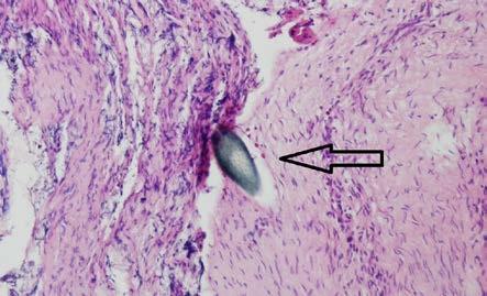 Histologie – kořenová anastomóza s viditelným stehem, barvení HE, zvětšení 40× Fig. 8. Histology – spinal root anastomosis with visible stitch, HE staining, zoom 40×