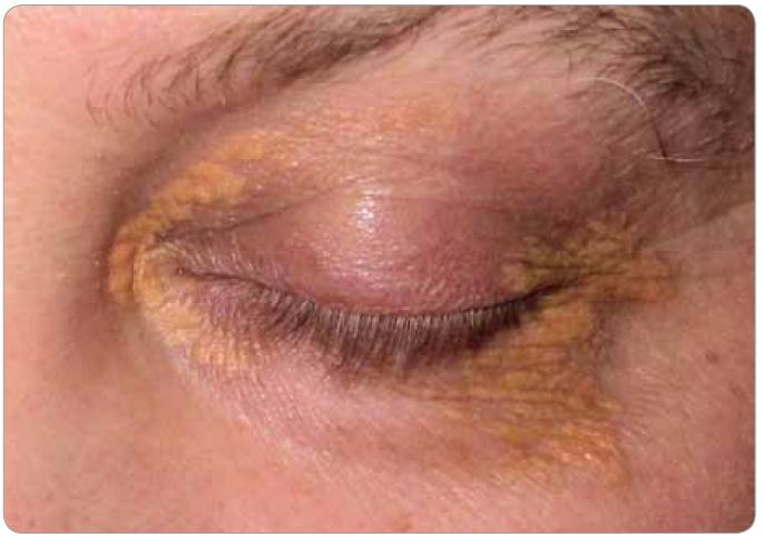Xantalesma kolem očí pacienta, která se postupně zvětšují.