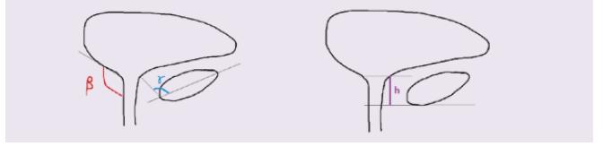 Obr. Sonografické parametry