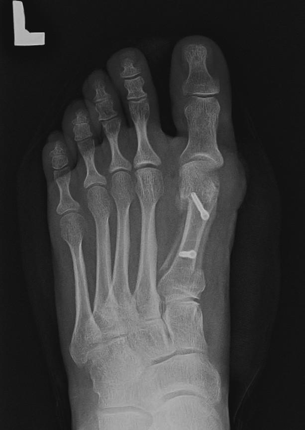 Obr. 5 b – stav po scarf osteotomii, varozita I. MTT je zkorigovaná, taktéž valgózní deviace palce je vyrovnaná.